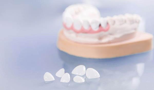 dental veneers in Delhi